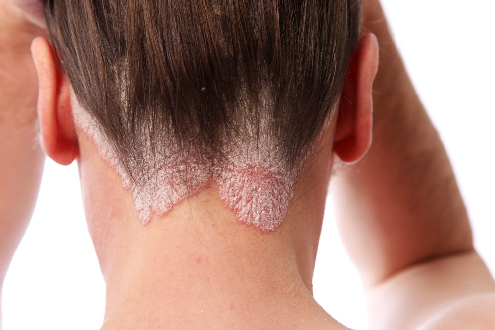 As psoriasis is a disease which lasts for many years it is referred to as a chronic skin disease 2